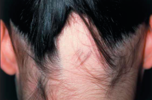 Alopecia Areata. Image from Hunt & McHale, 2005.