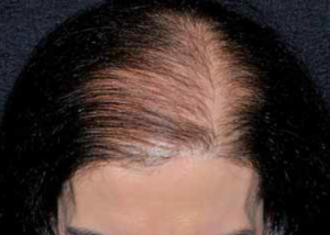 Female Pattern Hair Loss. Image from Müller Ramos & Amante Miot, 2015.